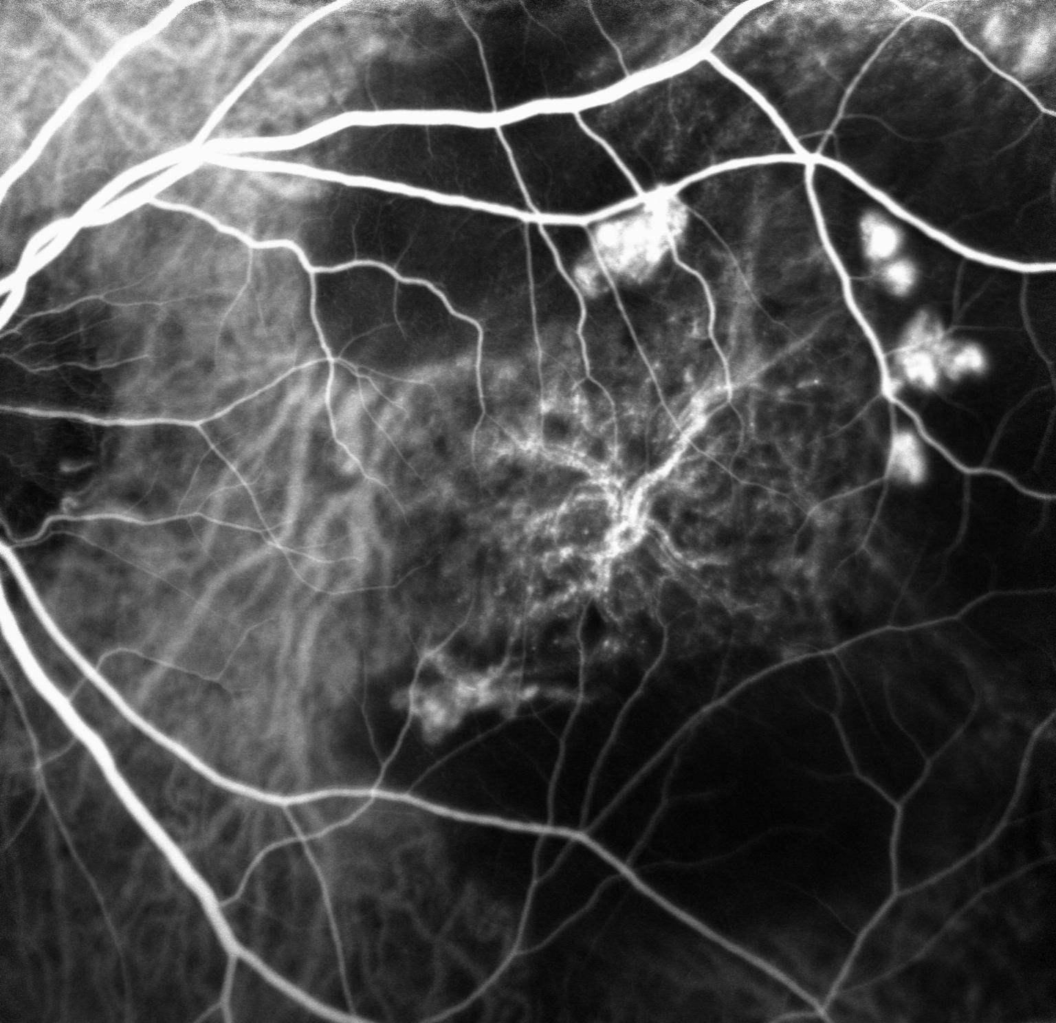 Retinal Polyps