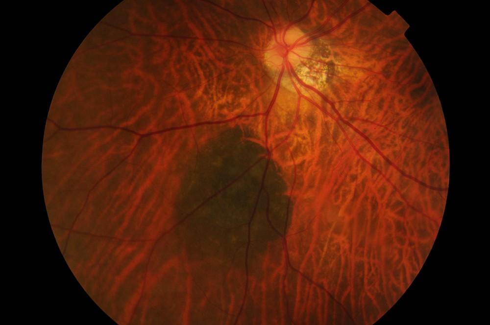 Retinal Naevus