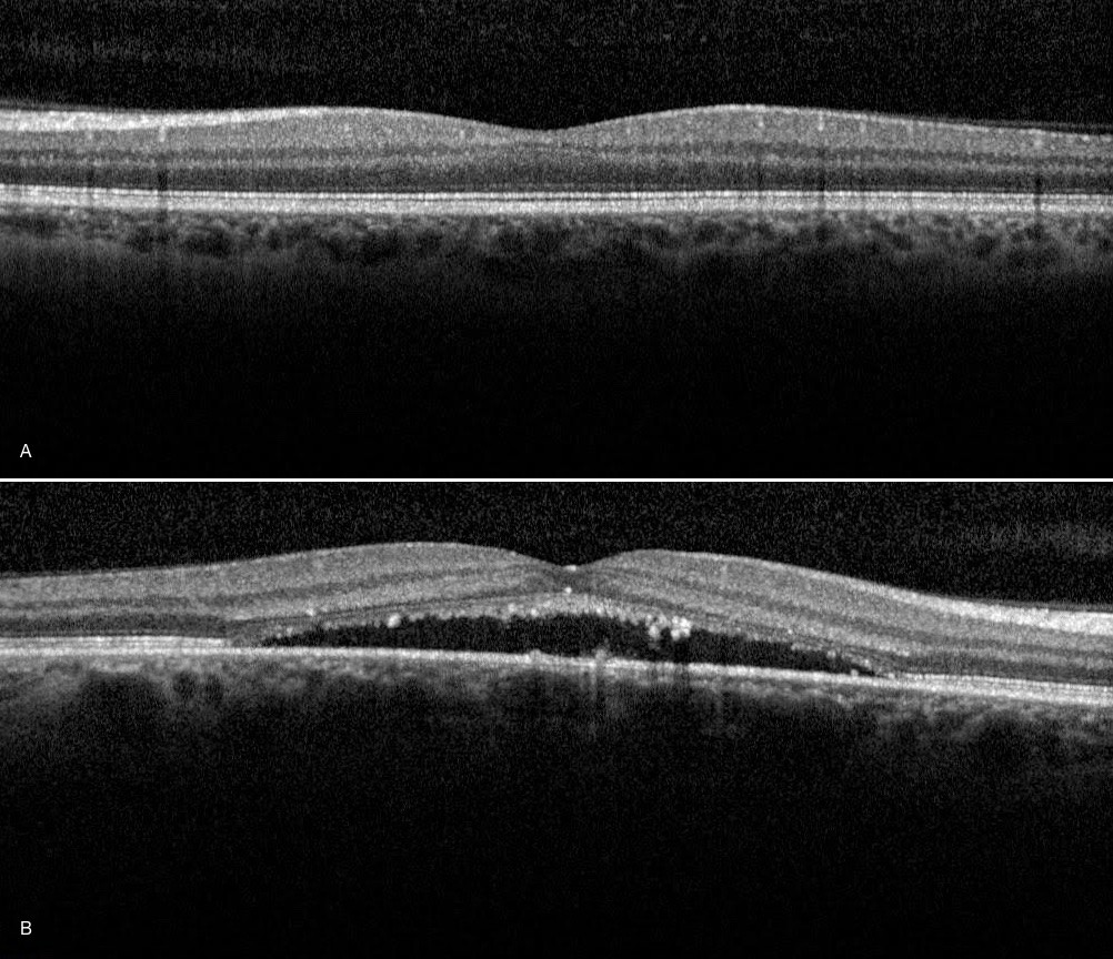 Image A: OCT of normal macula. Image B:  OCT of abnormal macula