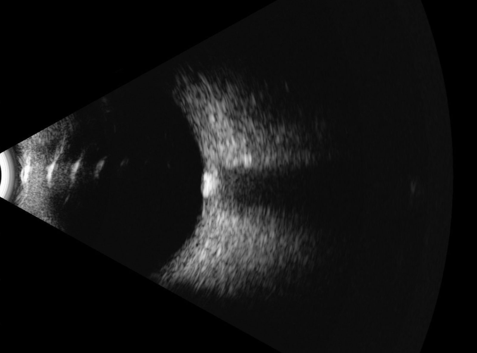 B-scan of the eye
