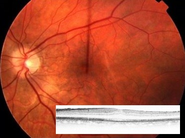 After vitrectomy and removal of the epiretinal membrane. Inset: OCT after removal of the epiretinal membrane