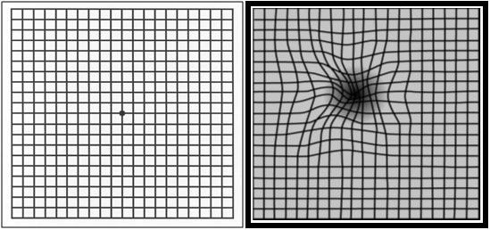Amsler Grid test: left is normal; right indicates central blurring and distortion which often indicates the development of WET Macular Degeneration (a choroidal neovascular membrane).