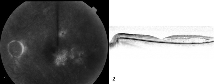 1. Fluorescein angiogram of CSMO, 2. OCT showing retinal swelling due to CSMO