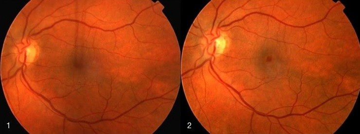 1. Macular hole before surgery. Vision 6/60, 2. Macular hole after surgery. Vision 6/9